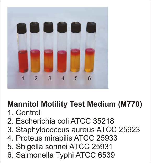 bacteria and motility medium tubes Sulfide indole motility medium (sim) be oxidized by some bacteria to form three major medium and tube giving a cloudy appearance.